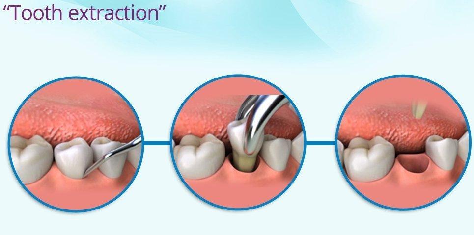 remove the damaged teeth with holistic dentist san diego